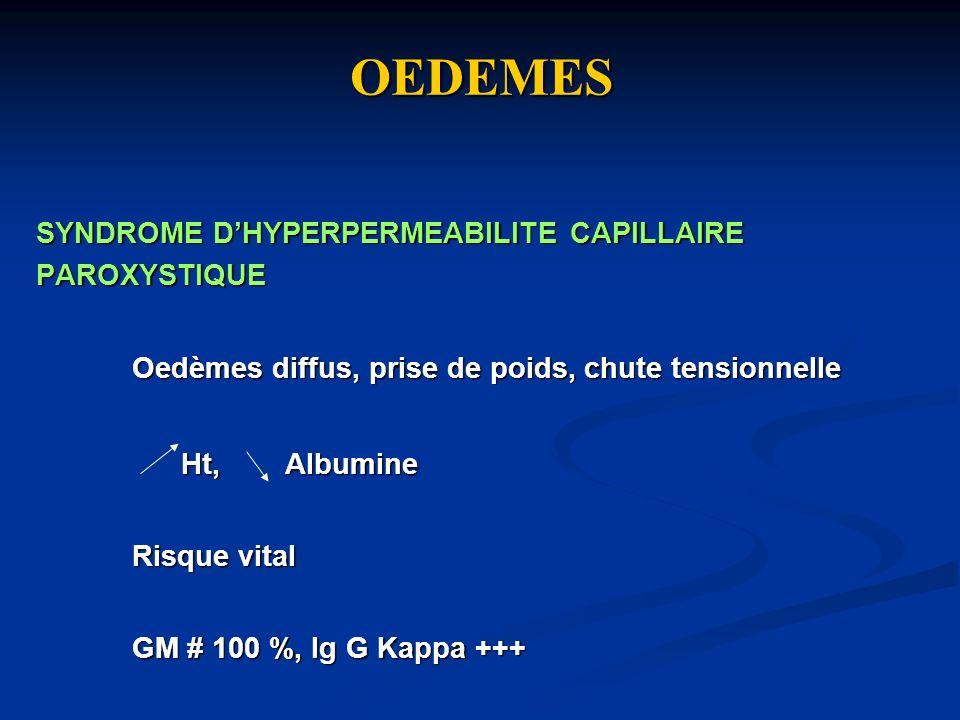 OEDEMES SYNDROME DHYPERPERMEABILITE CAPILLAIRE PAROXYSTIQUE Oedèmes diffus, prise de poids, chute tensionnelle Ht, Albumine Ht, Albumine Risque vital