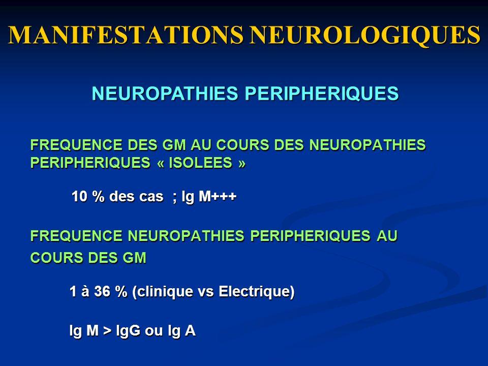 MANIFESTATIONS NEUROLOGIQUES FREQUENCE DES GM AU COURS DES NEUROPATHIES PERIPHERIQUES « ISOLEES » 10 % des cas ; Ig M+++ 10 % des cas ; Ig M+++ FREQUE