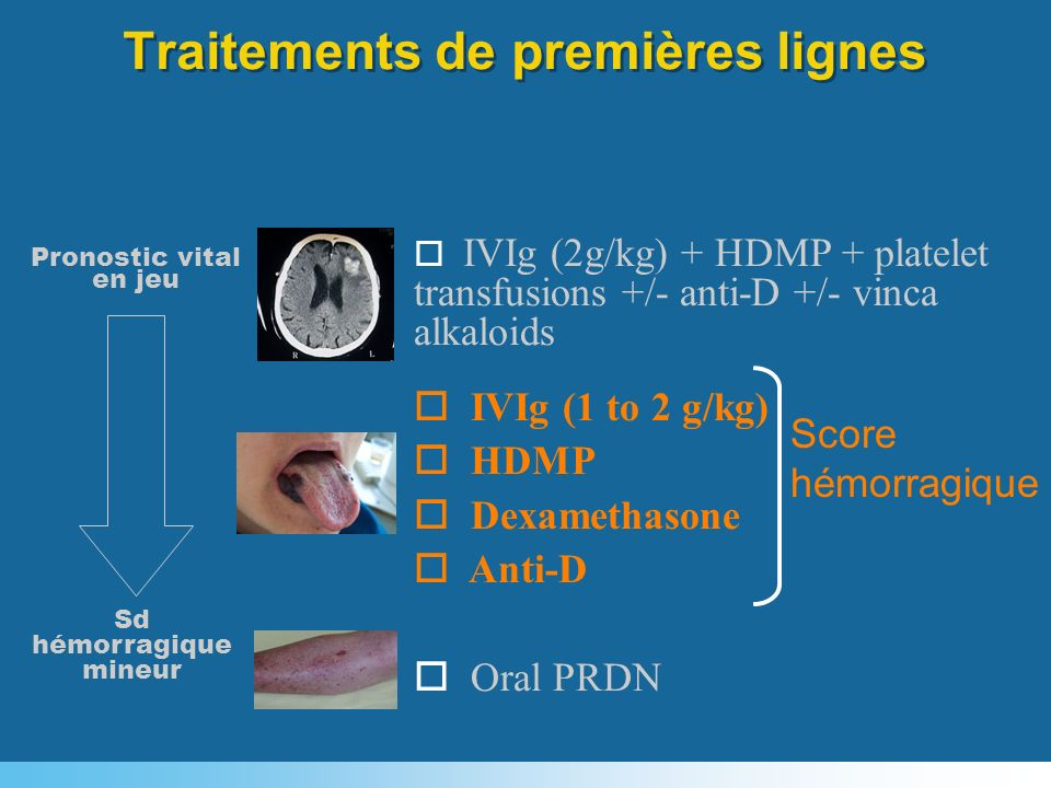 Traitements de premières lignes Pronostic vital en jeu o IVIg (2g/kg) + HDMP + platelet transfusions +/- anti-D +/- vinca alkaloids o IVIg (1 to 2 g/k