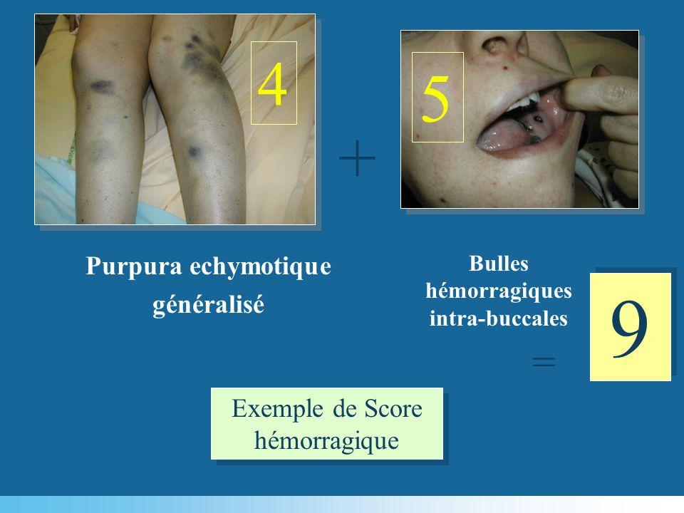 + 9 9 = Exemple de Score hémorragique 4 5 Purpura echymotique généralisé Bulles hémorragiques intra-buccales