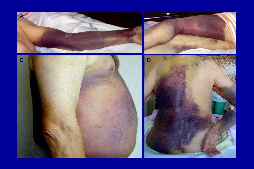 Hémophilie acquise : diagnostic en règle aisé… Expression clinique : syndrome hémorragique diffus Hématomes sous-cutanés +++ Hématomes profonds Rarement des hémarthroses NE PAS NEGLIGER les formes apparemment minimes
