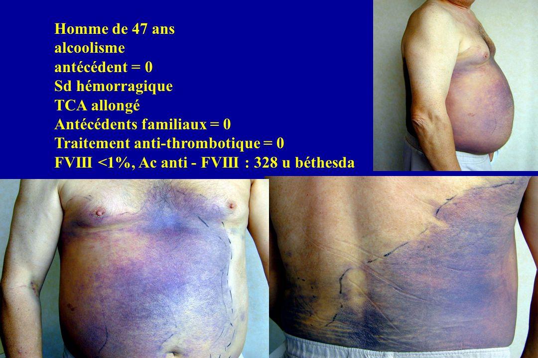 Homme de 88 ans Sd hémorragique sous-cutané dapparition brutale TCA allongé FVIII < 1% Anti - FVIII 96 u béthesda Disparition de l anticorps à J 120 (P + CPM)