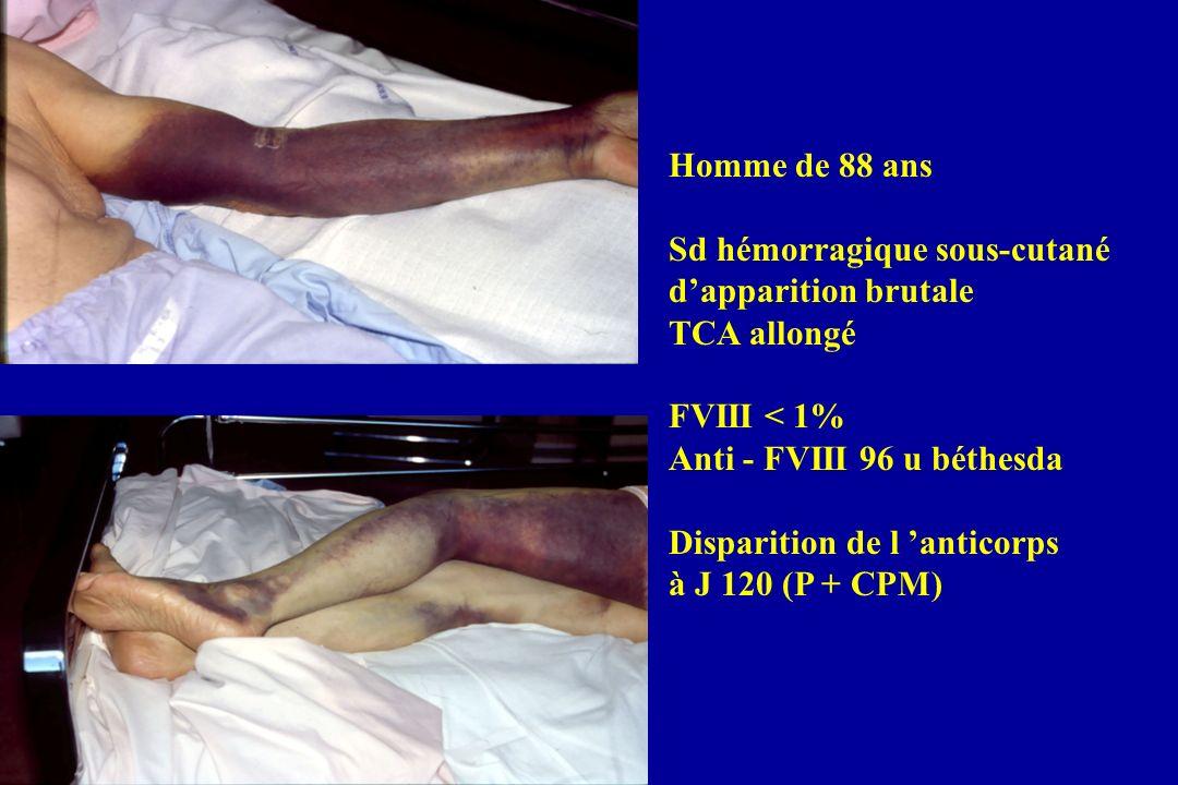 Circonstances du diagnostic Syndrome hémorragique : (71/82 : 90%) o Dans 47/82 cas, les premiers signes datant de moins de 30 jours, mais évocateur dHA o 15 transfusions dans les 6 mois précédents (11 de 1 à 30 j, 2 de 30 à 90 j, 2 > 90 j) TCA allongé : (11) o antécédents hémorragiques 5/11 o Totalement asymptomatique 6 SACHA UK Register 172 cas dHA, mais données disponibles 155 cas Manifestations hémorragiques dans 149 cas (95%)