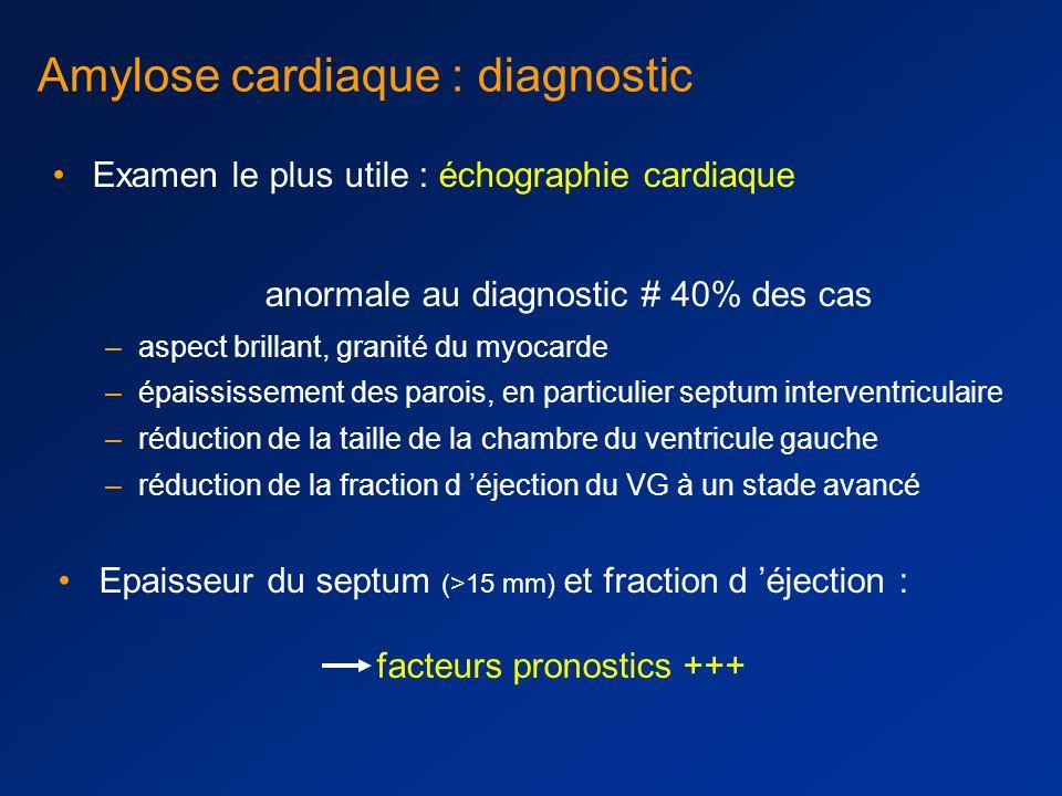 Amylose AL: atteinte cardiaque infiltration progressive du myocarde cardiopathie hypertrophique Cœur normal amylose cardiaque septum