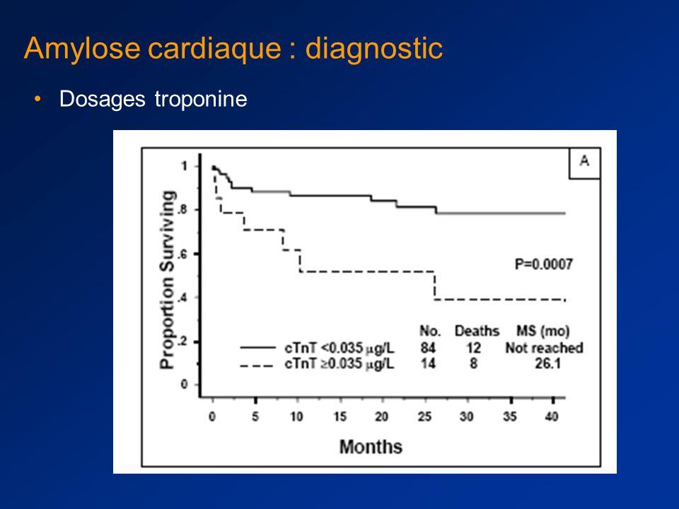 Amylose cardiaque : diagnostic Examen le plus utile : échographie cardiaque anormale au diagnostic # 40% des cas –aspect brillant, granité du myocarde