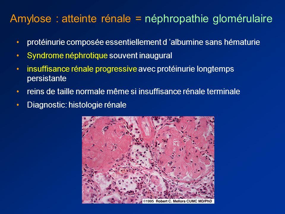Amylose cardiaque : diagnostic Dosages Pro-BNP