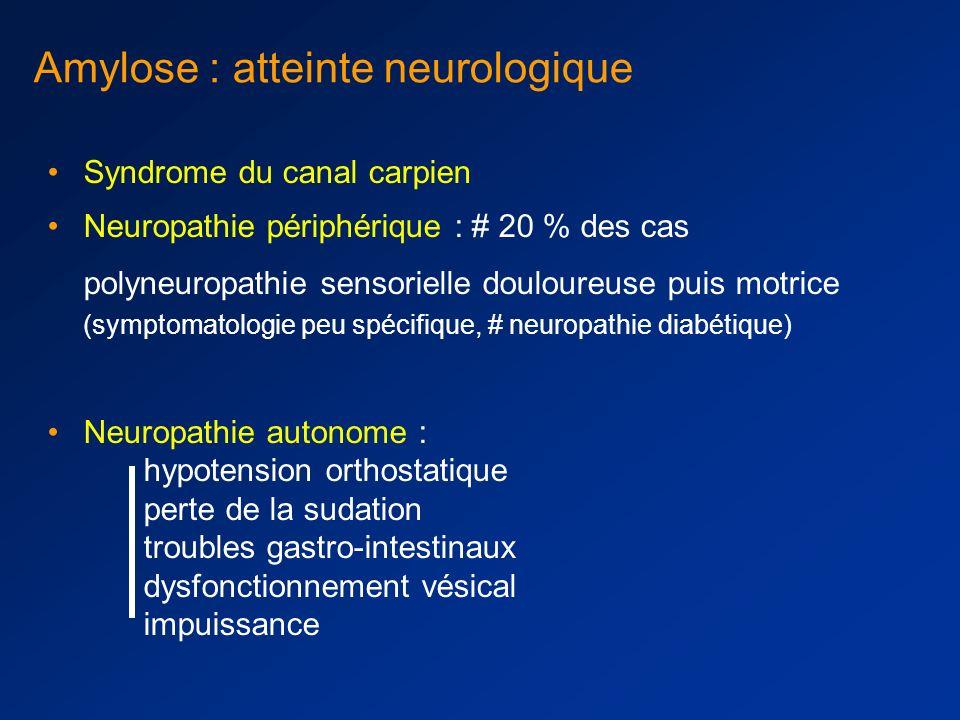 Amylose : atteinte rénale = néphropathie glomérulaire protéinurie composée essentiellement d albumine sans hématurie Syndrome néphrotique souvent inau