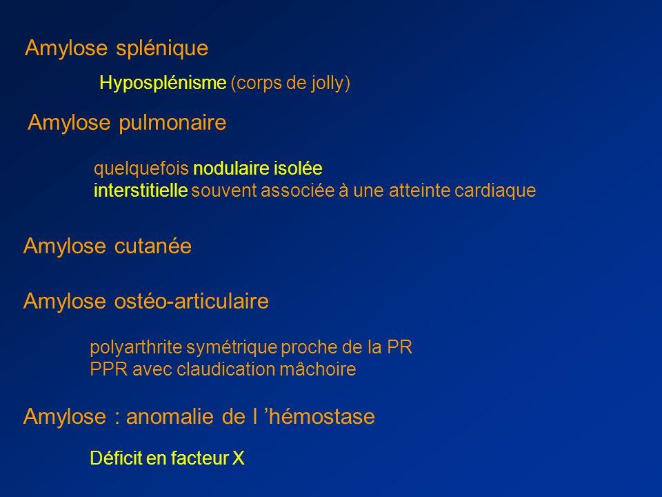 Amylose : atteinte digestive Peut toucher l ensemble du tractus digestif –macroglossie –dégout alimentaire –malabsorption –perforations –hémorragies –