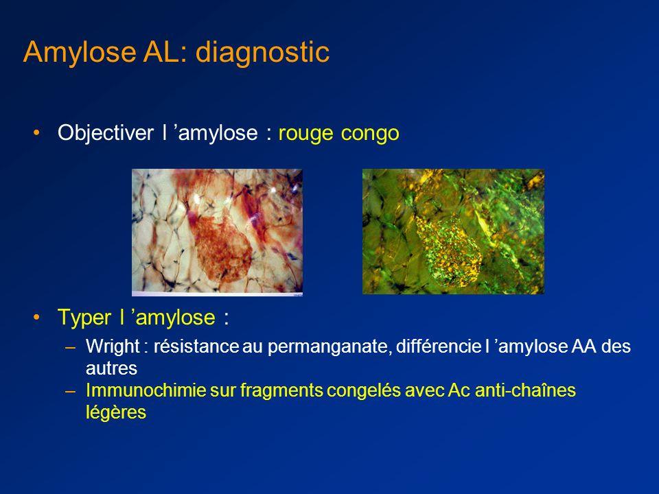 Amylose AL: diagnostic Histologie d un tissu atteint biopsie d organe symptomatique (rein, cœur, nerf) presque toujours positif mais souvent non indis