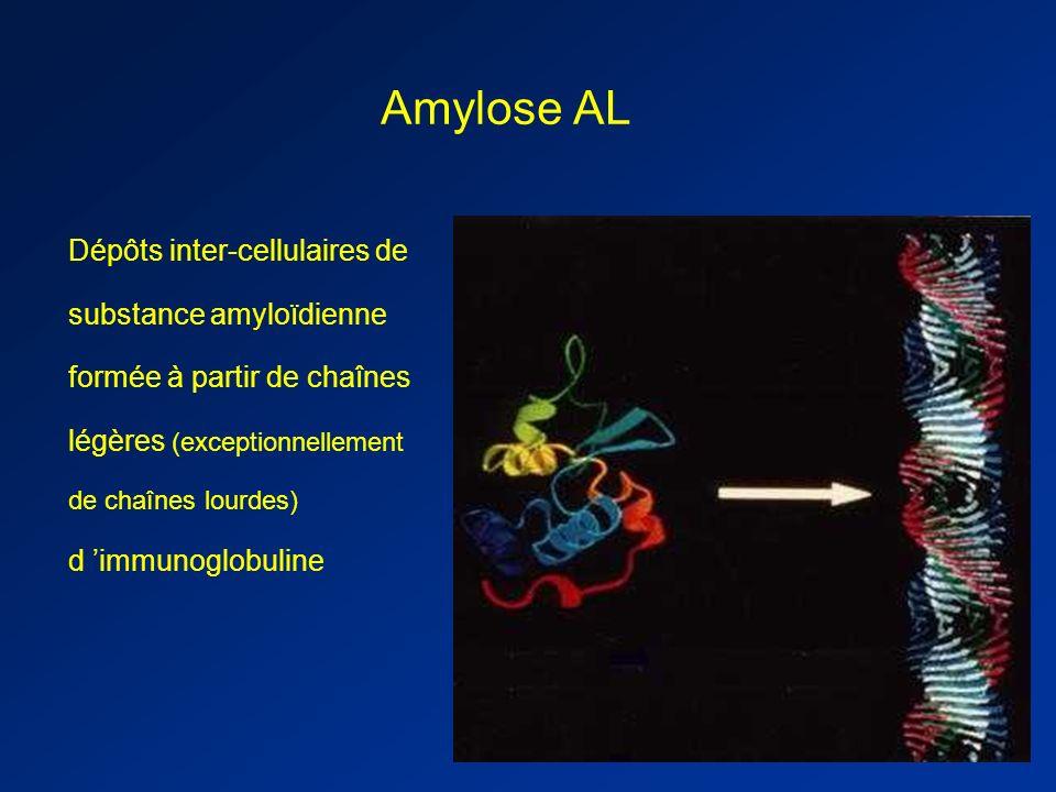Amylose AL Dépôts inter-cellulaires de substance amyloïdienne formée à partir de chaînes légères (exceptionnellement de chaînes lourdes) d immunoglobuline