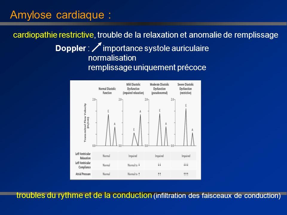 Traitement de lamylose AL: Conclusions * Melphalan-Dexaméthasone = traitement de référence * Traitement intensif - en labsence de réponse rapide au M-