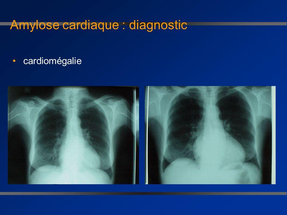 Amylose cardiaque : cardiopathie restrictive, trouble de la relaxation et anomalie de remplissage Doppler : importance systole auriculaire normalisati