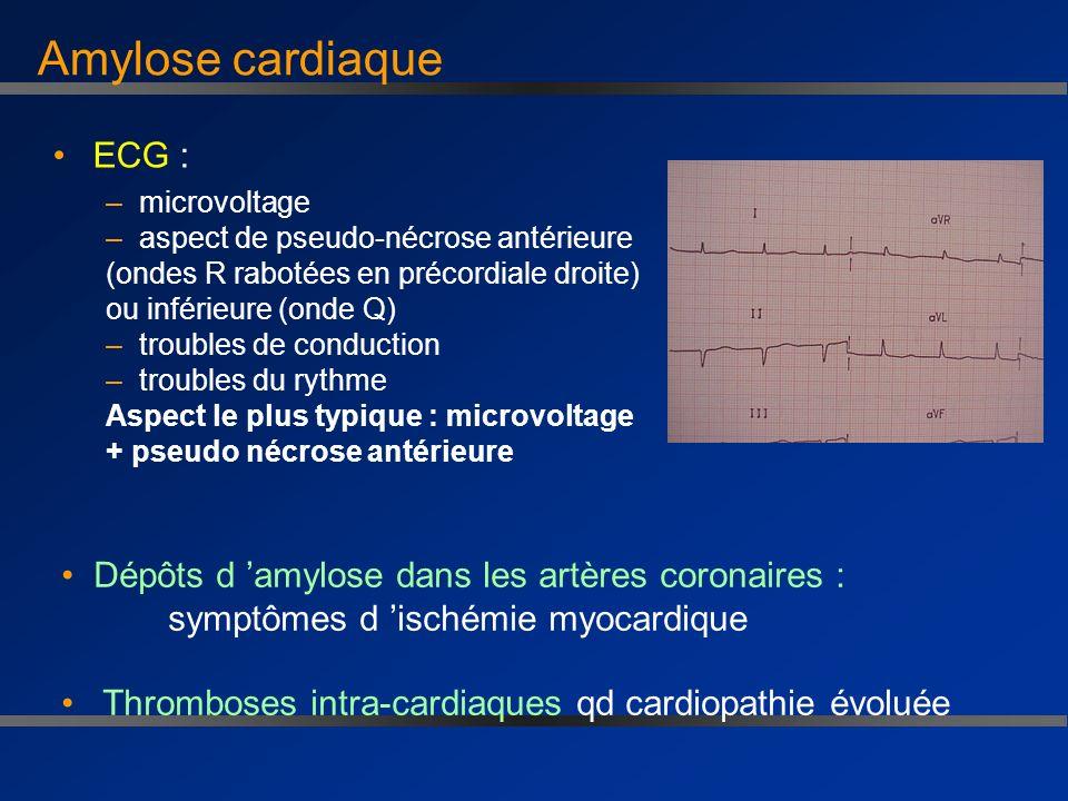 Amylose cardiaque : diagnostic cardiomégalie