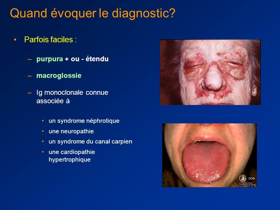 Quand évoquer le diagnostic.