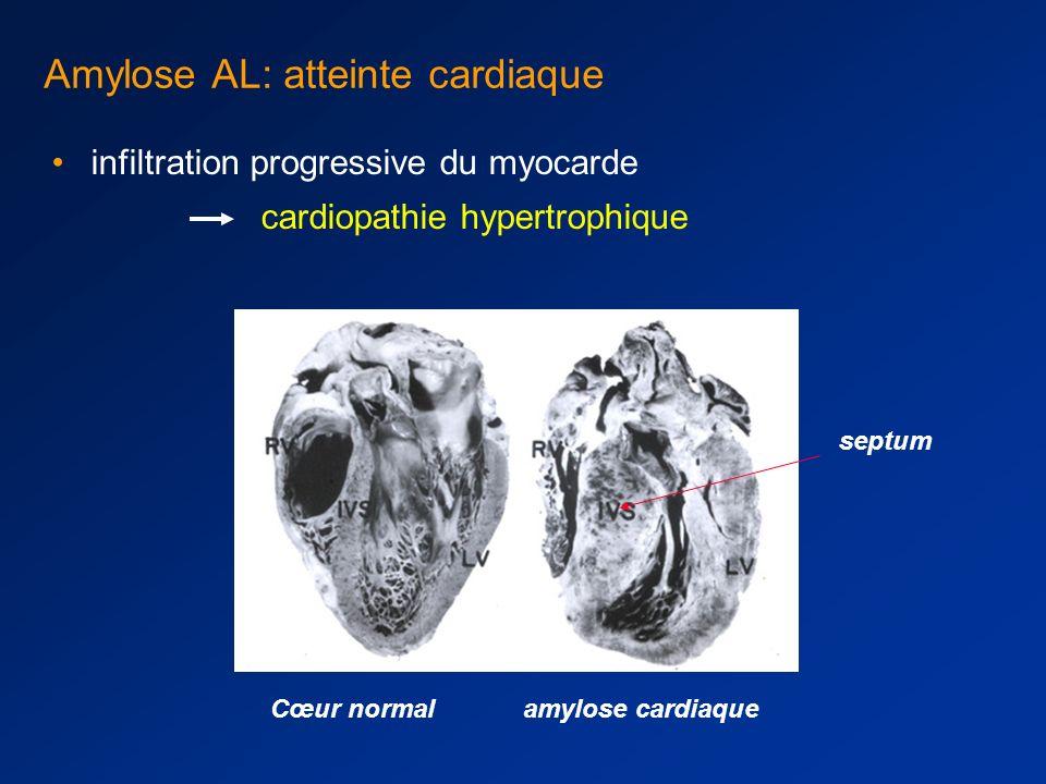Amylose cardiaque ECG : –microvoltage –aspect de pseudo-nécrose antérieure (ondes R rabotées en précordiale droite) ou inférieure (onde Q) –troubles de conduction –troubles du rythme Aspect le plus typique : microvoltage + pseudo nécrose antérieure Dépôts d amylose dans les artères coronaires : symptômes d ischémie myocardique Thromboses intra-cardiaques qd cardiopathie évoluée