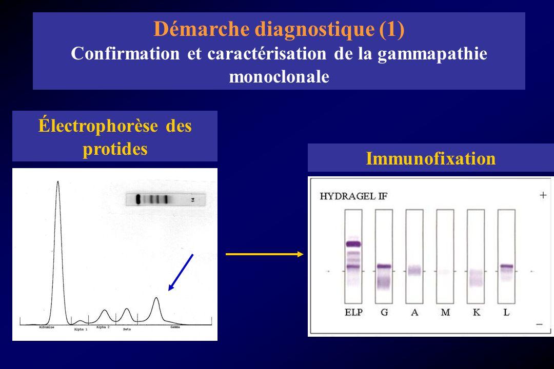 Électrophorèse des protides Immunofixation Démarche diagnostique (1) Confirmation et caractérisation de la gammapathie monoclonale