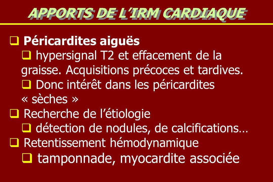 Péricardites aiguës hypersignal T2 et effacement de la graisse.