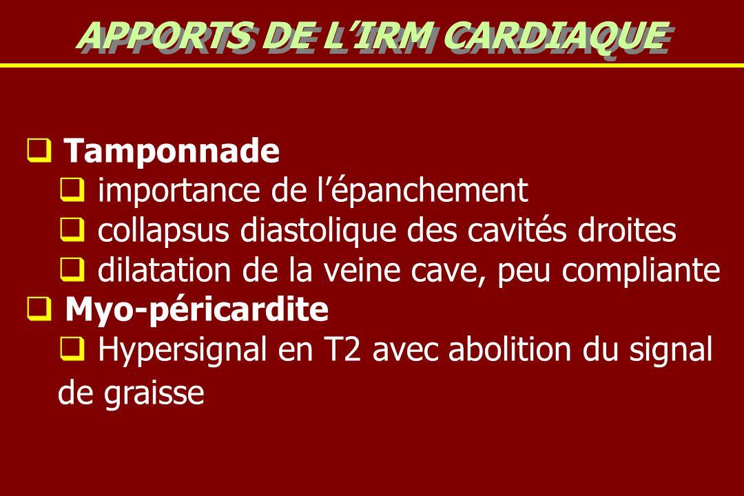 Tamponnade importance de lépanchement collapsus diastolique des cavités droites dilatation de la veine cave, peu compliante Myo-péricardite Hypersignal en T2 avec abolition du signal de graisse APPORTS DE LIRM CARDIAQUE