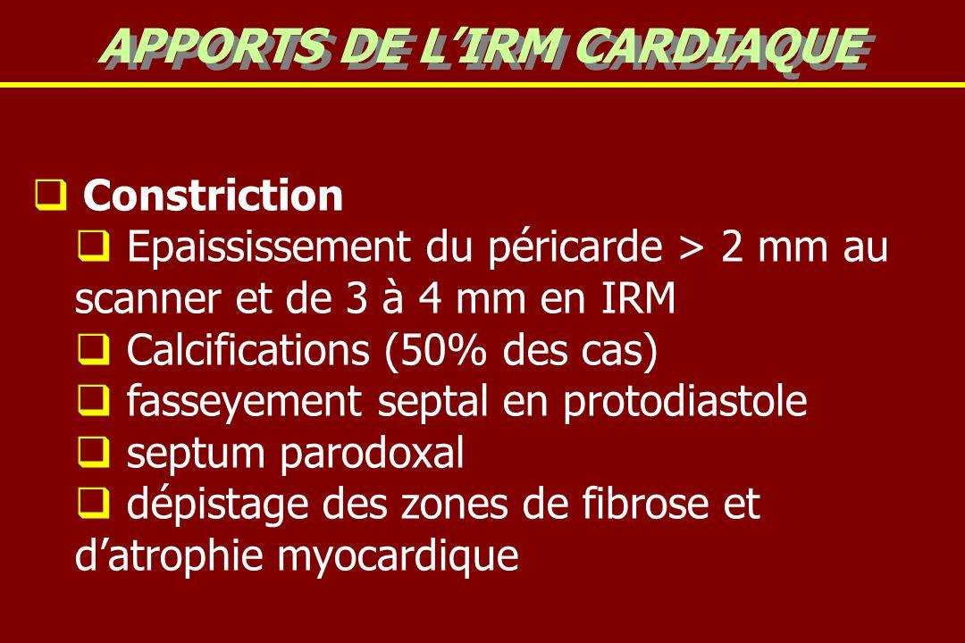 Constriction Epaississement du péricarde > 2 mm au scanner et de 3 à 4 mm en IRM Calcifications (50% des cas) fasseyement septal en protodiastole septum parodoxal dépistage des zones de fibrose et datrophie myocardique APPORTS DE LIRM CARDIAQUE