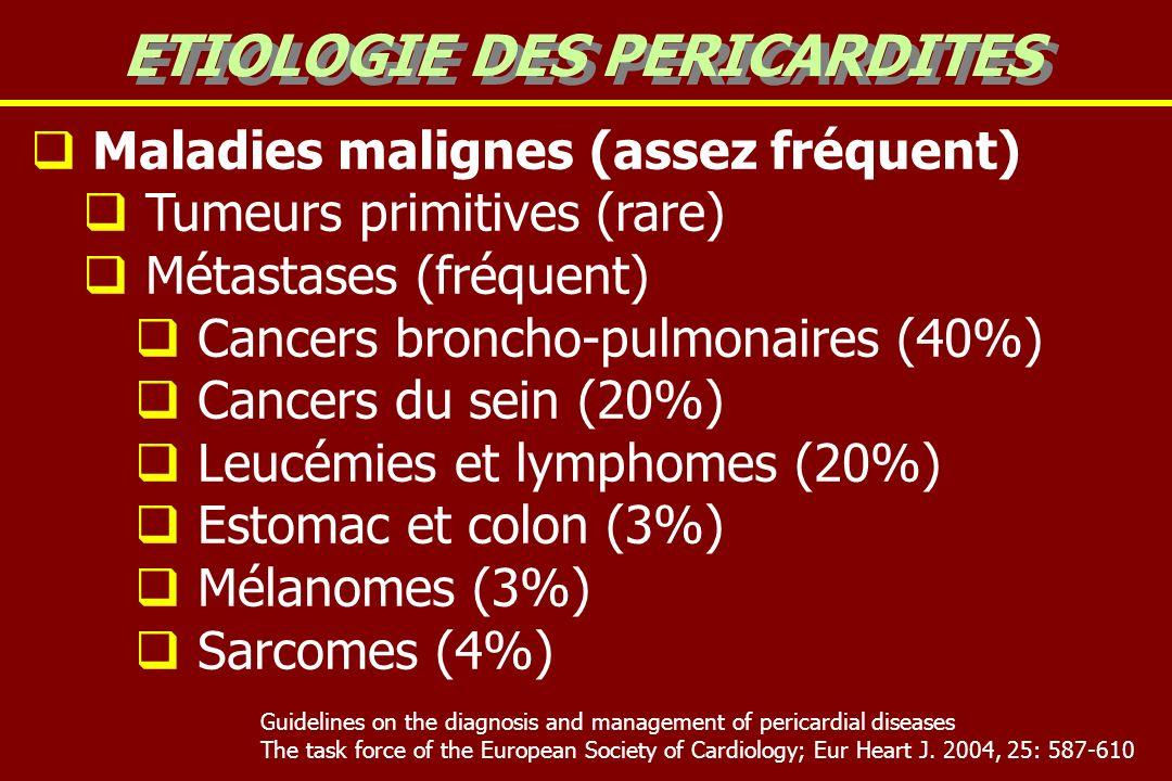 Maladies malignes (assez fréquent) Tumeurs primitives (rare) Métastases (fréquent) Cancers broncho-pulmonaires (40%) Cancers du sein (20%) Leucémies e