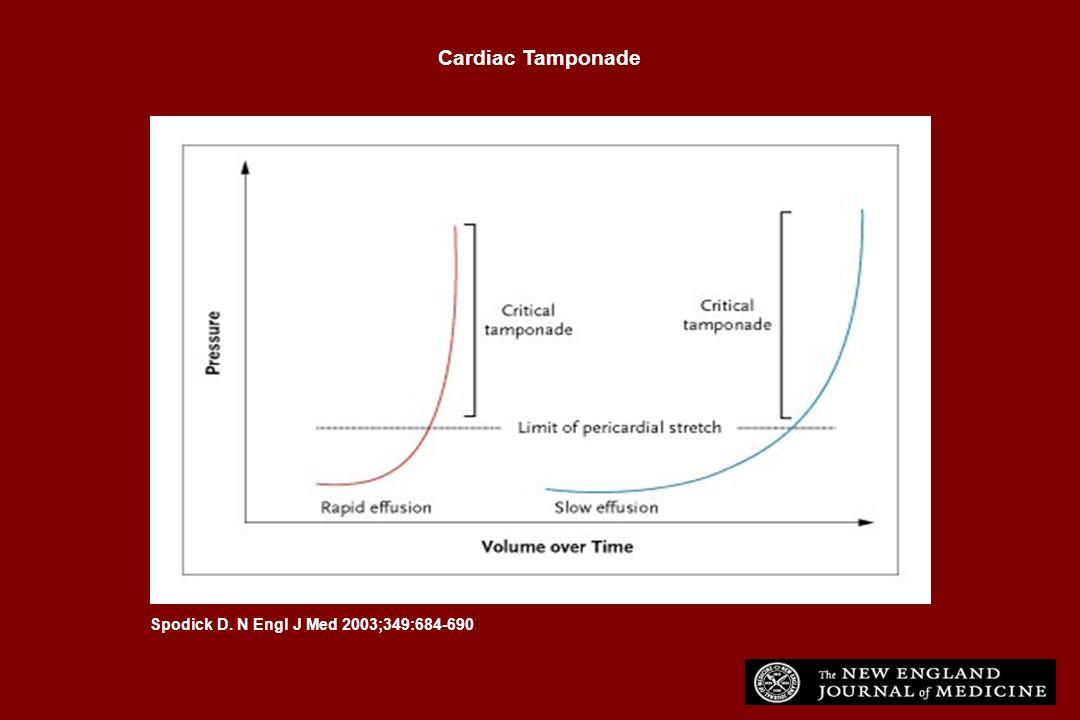 Spodick D. N Engl J Med 2003;349:684-690 Cardiac Tamponade