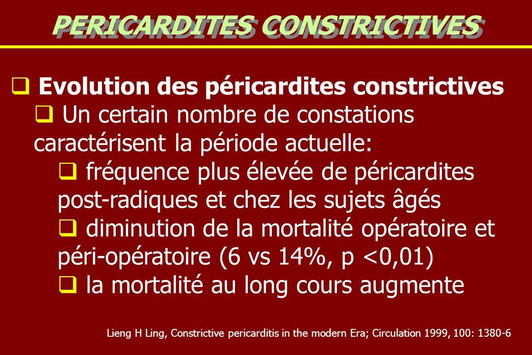 Evolution des péricardites constrictives Un certain nombre de constations caractérisent la période actuelle: fréquence plus élevée de péricardites post-radiques et chez les sujets âgés diminution de la mortalité opératoire et péri-opératoire (6 vs 14%, p <0,01) la mortalité au long cours augmente PERICARDITES CONSTRICTIVES Lieng H Ling, Constrictive pericarditis in the modern Era; Circulation 1999, 100: 1380-6