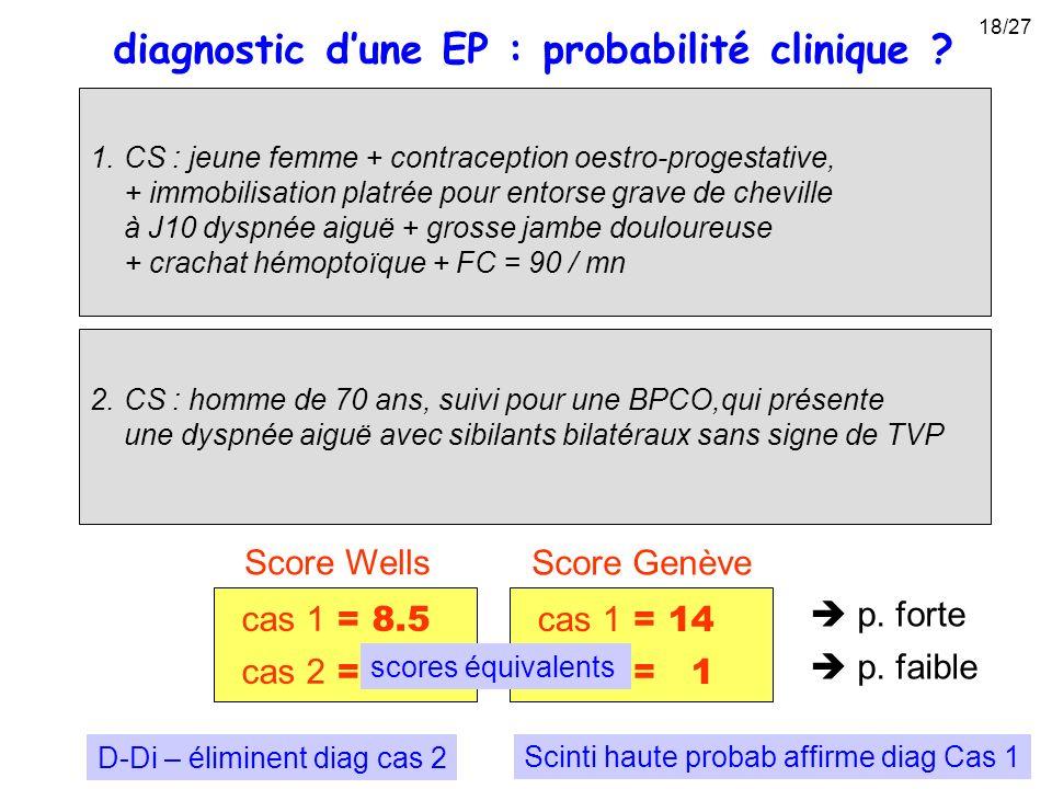 1.CS : jeune femme + contraception oestro-progestative, + immobilisation platrée pour entorse grave de cheville à J10 dyspnée aiguë + grosse jambe dou