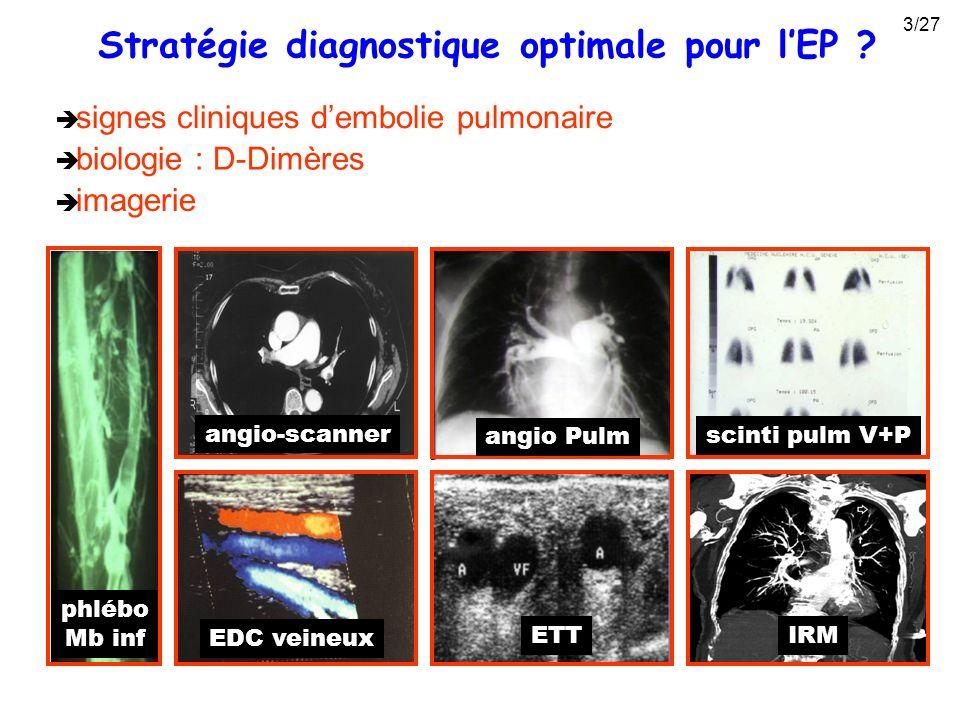 biologie : D-Dimères scinti pulm V+P ETT angio-scanner EDC veineux angio Pulm signes cliniques dembolie pulmonaire IRM phlébo Mb inf imagerie Stratégi