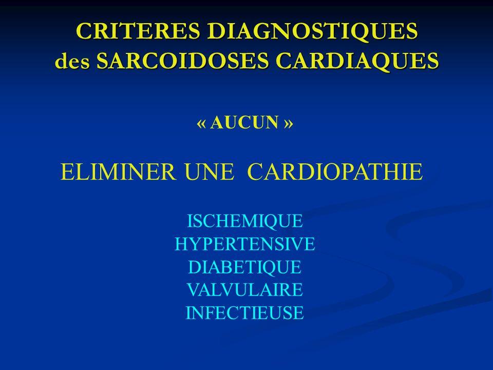 CRITERES DIAGNOSTIQUES des SARCOIDOSES CARDIAQUES « AUCUN » ELIMINER UNE CARDIOPATHIE ISCHEMIQUE HYPERTENSIVE DIABETIQUE VALVULAIRE INFECTIEUSE
