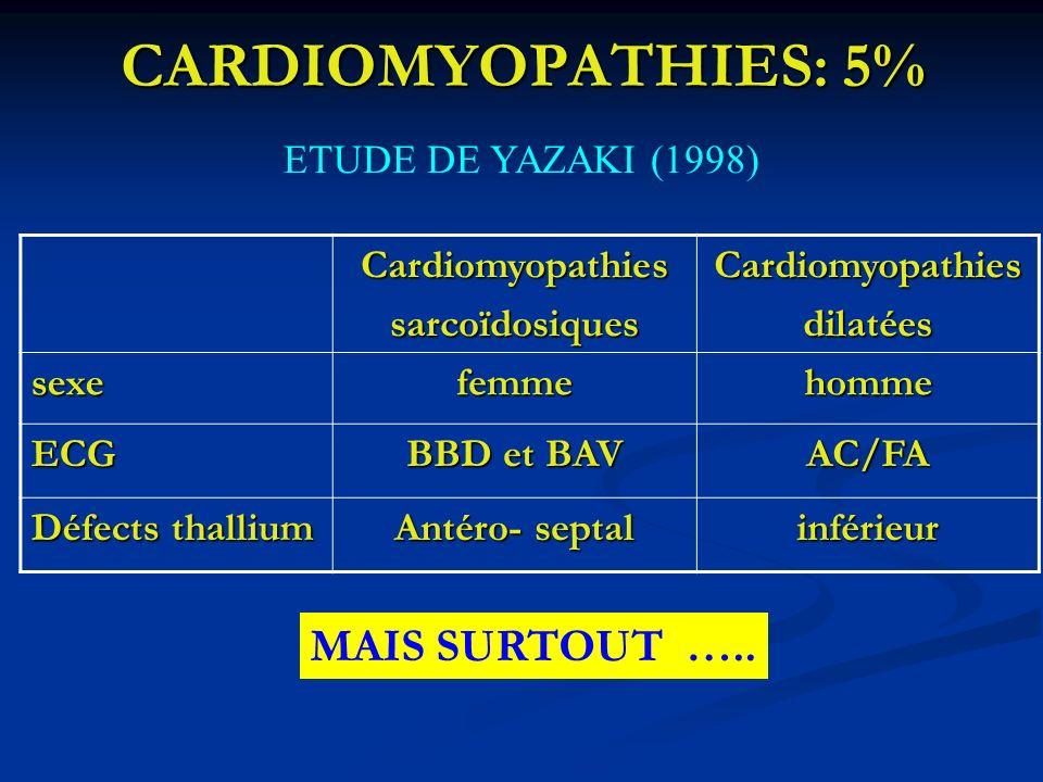 CARDIOMYOPATHIES: 5% ETUDE DE YAZAKI (1998) CardiomyopathiessarcoïdosiquesCardiomyopathiesdilatées sexefemmehomme ECG BBD et BAV AC/FA Défects thalliu
