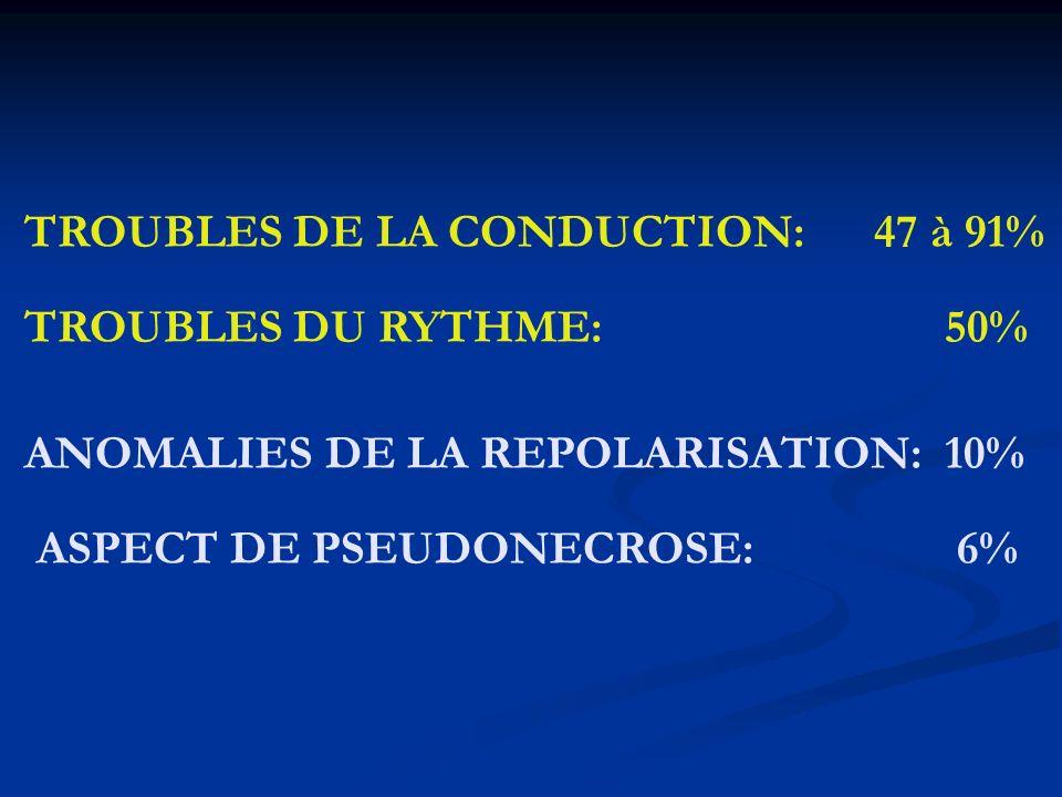 TROUBLES DE LA CONDUCTION: 47 à 91% TROUBLES DU RYTHME: 50% ANOMALIES DE LA REPOLARISATION: 10% ASPECT DE PSEUDONECROSE: 6%