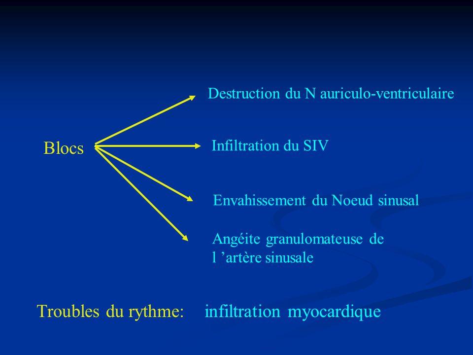 Blocs Troubles du rythme: infiltration myocardique Destruction du N auriculo-ventriculaire Angéite granulomateuse de l artère sinusale Envahissement d