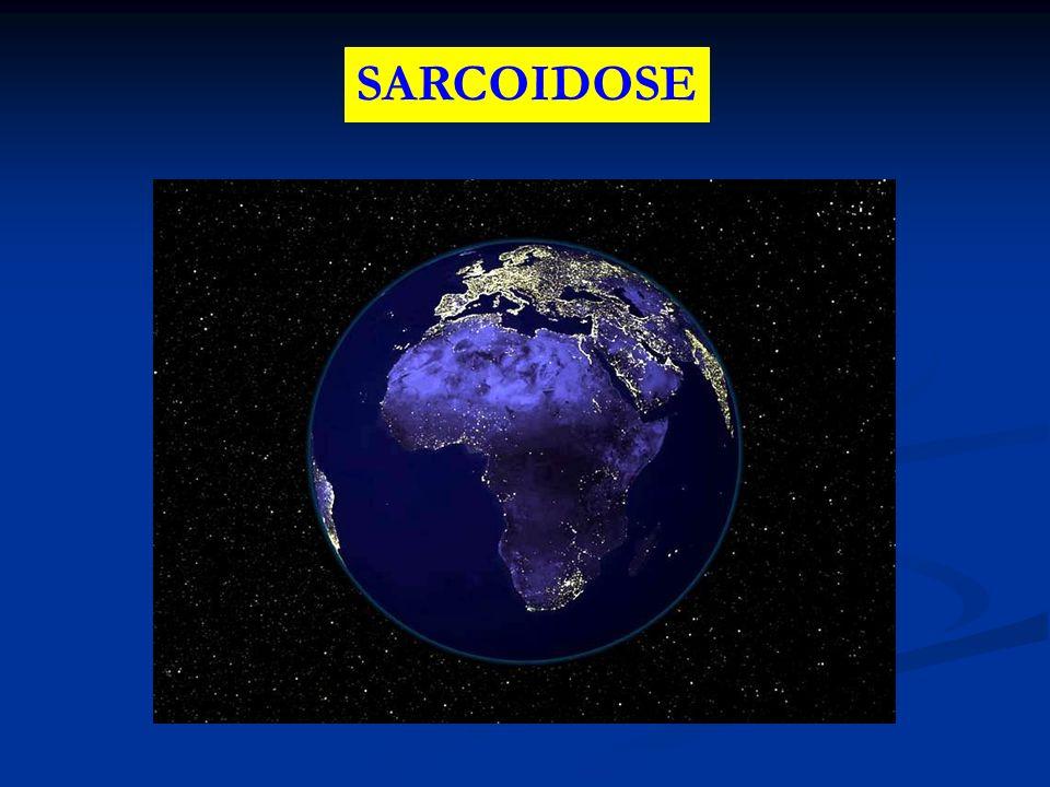 SARCOIDOSE