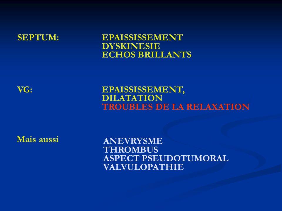 SEPTUM: EPAISSISSEMENT DYSKINESIE ECHOS BRILLANTS VG: EPAISSISSEMENT, DILATATION TROUBLES DE LA RELAXATION Mais aussi ANEVRYSME THROMBUS ASPECT PSEUDO