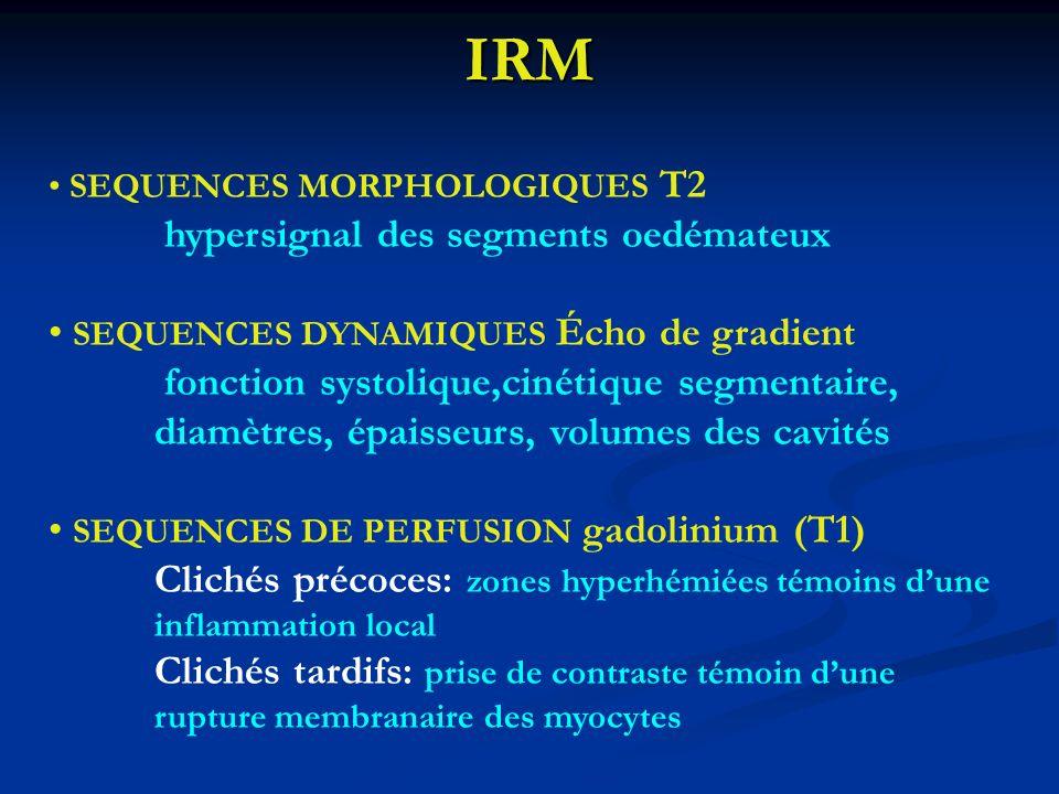 IRM SEQUENCES MORPHOLOGIQUES T2 hypersignal des segments oedémateux SEQUENCES DYNAMIQUES Écho de gradient fonction systolique,cinétique segmentaire, d