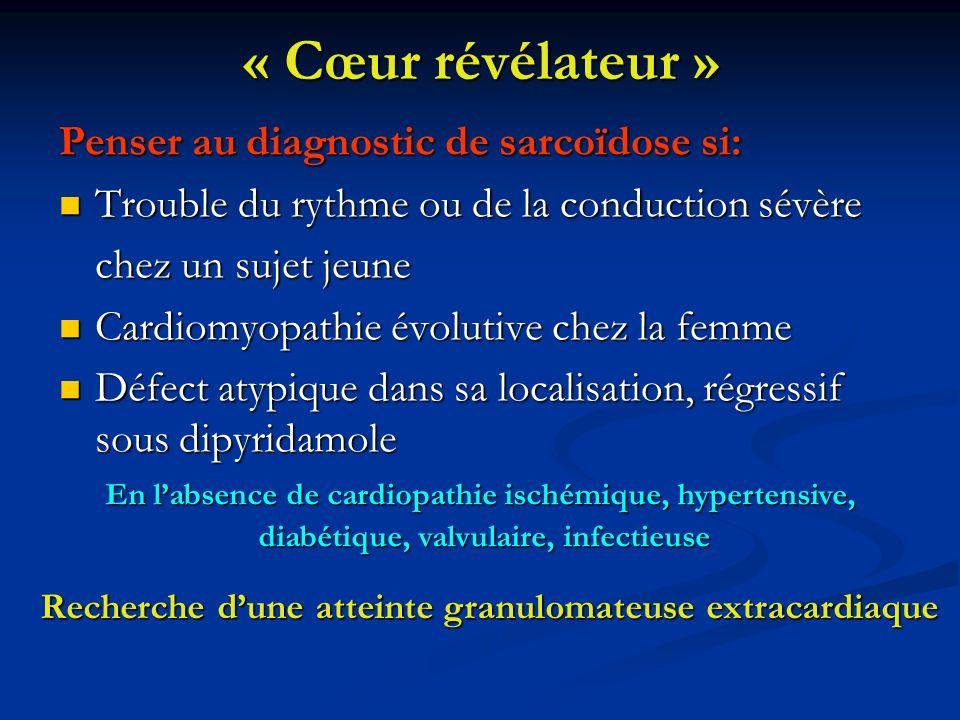 « Cœur révélateur » Penser au diagnostic de sarcoïdose si: Trouble du rythme ou de la conduction sévère Trouble du rythme ou de la conduction sévère c