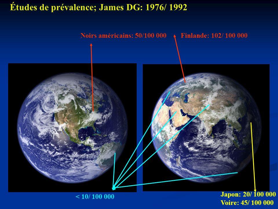 Finlande: 102/ 100 000 Japon: 20/ 100 000 Voire: 45/ 100 000 Noirs américains: 50/100 000 < 10/ 100 000 Études de prévalence; James DG: 1976/ 1992