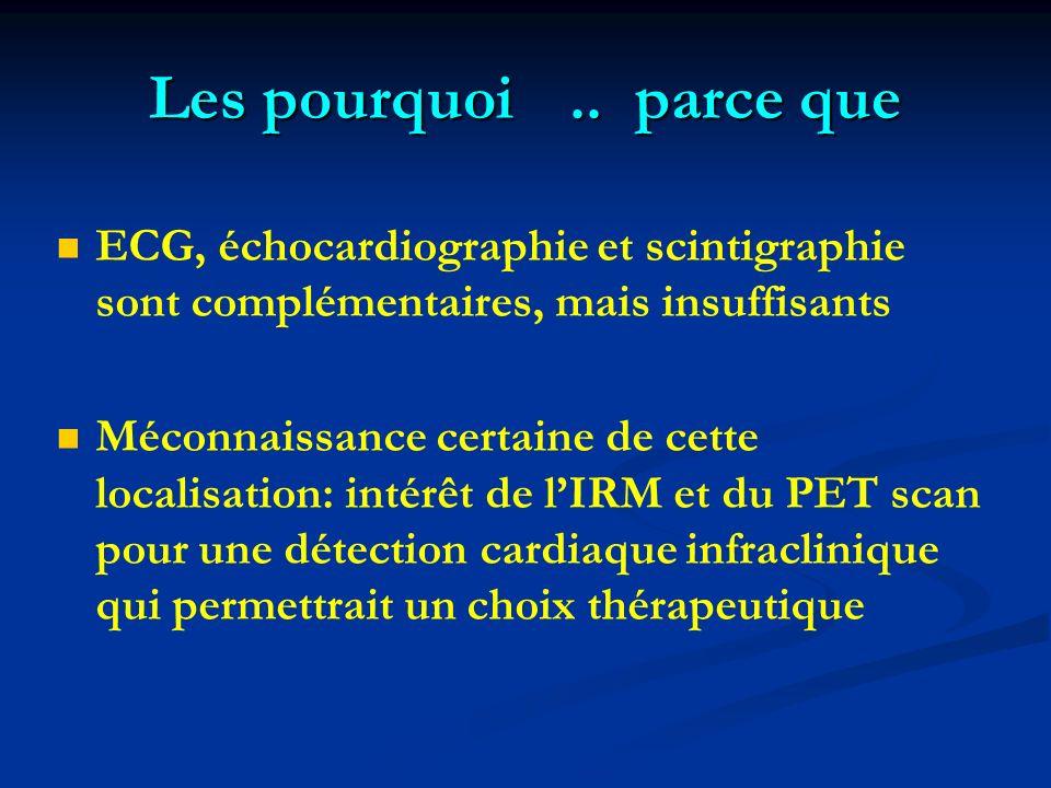 Les pourquoi.. parce que ECG, échocardiographie et scintigraphie sont complémentaires, mais insuffisants Méconnaissance certaine de cette localisation