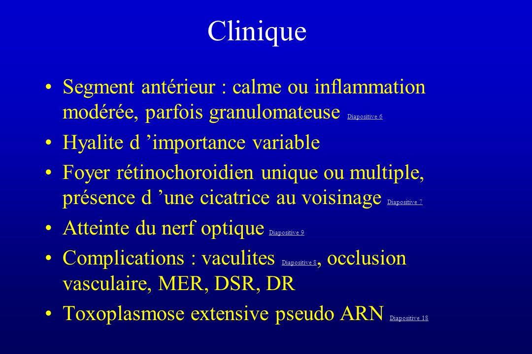 Clinique Segment antérieur : calme ou inflammation modérée, parfois granulomateuse Diapositive 6 Diapositive 6 Hyalite d importance variable Foyer rét