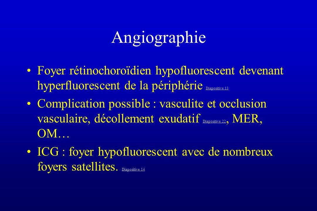 Angiographie Foyer rétinochoroïdien hypofluorescent devenant hyperfluorescent de la périphérie Diapositive 13 Diapositive 13 Complication possible : v