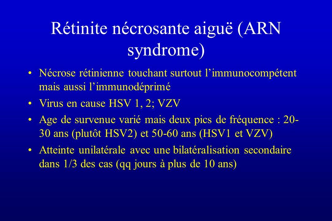Rétinite nécrosante aiguë (ARN syndrome) Nécrose rétinienne touchant surtout limmunocompétent mais aussi limmunodéprimé Virus en cause HSV 1, 2; VZV A