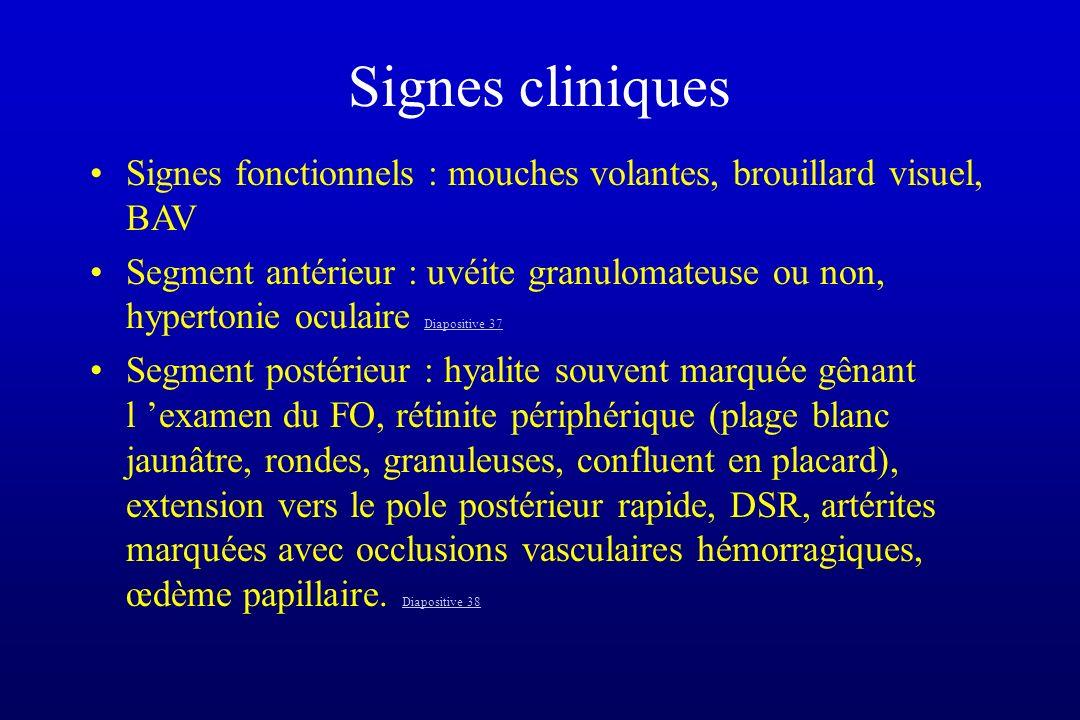 Signes cliniques Signes fonctionnels : mouches volantes, brouillard visuel, BAV Segment antérieur : uvéite granulomateuse ou non, hypertonie oculaire