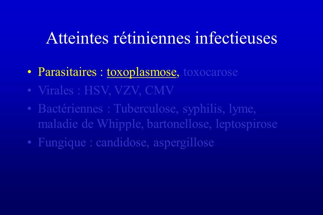 Syphilis et SIDA Séroprévalence 20% des homosexuels Epidémie actuelle depuis 2004, avec flambée de nouveaux cas dans toutes les grandes capitales Européennes et aux USA Atteinte OPH associé à une neurosyphilis dans plus de 70% des cas Uvéite antérieure granulomateuse ou non, hyalite, rétinite, lésion placoide au niv de l EP, papillite Neuropathie optique Diagnostic clinique, sérologie, PL, réponse au traitement Traitement : peni G iv 21 jours dose totale 440 MU/j + probenecid