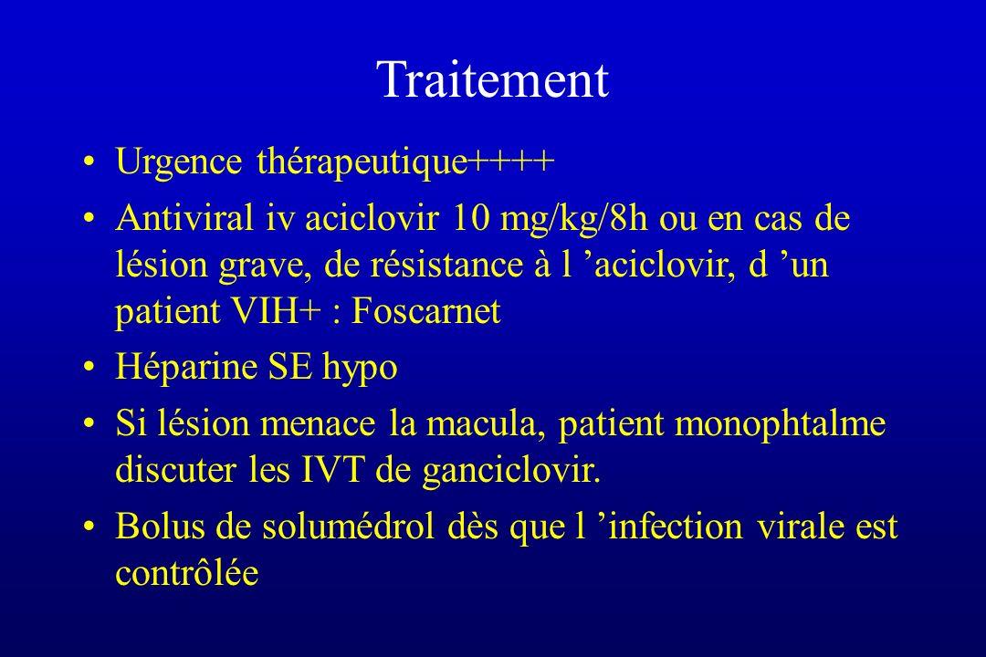 Traitement Urgence thérapeutique++++ Antiviral iv aciclovir 10 mg/kg/8h ou en cas de lésion grave, de résistance à l aciclovir, d un patient VIH+ : Fo