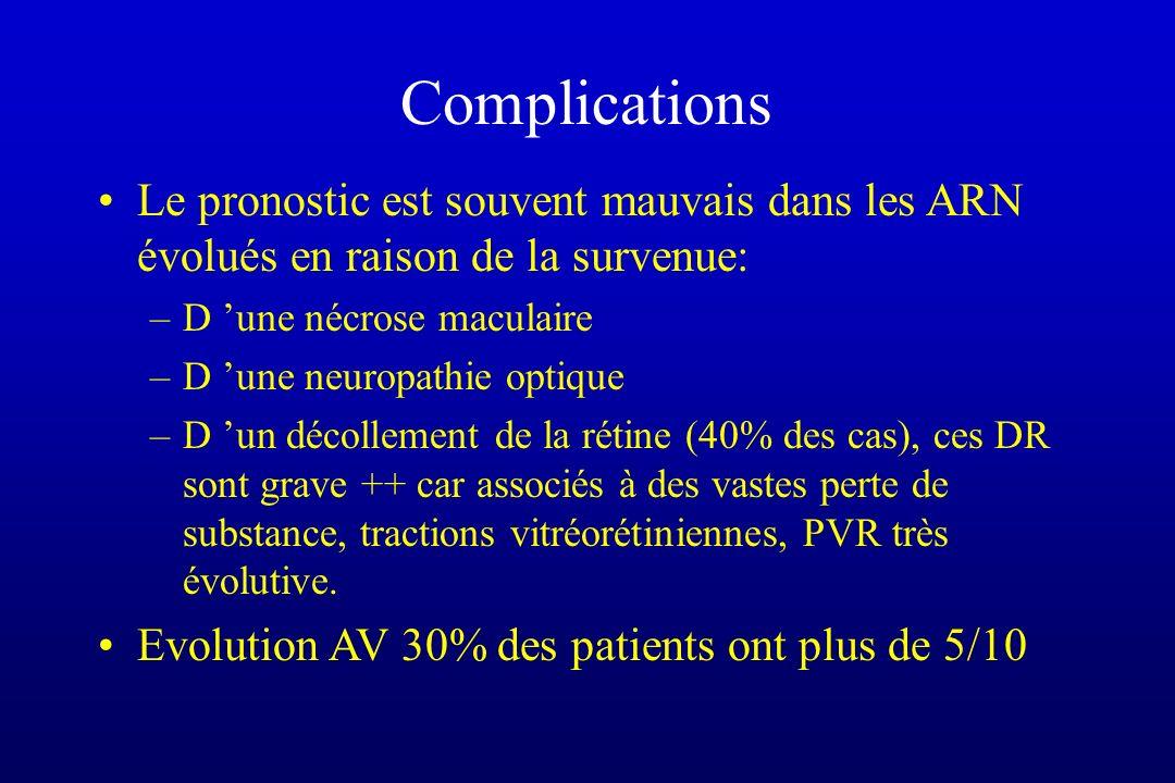 Complications Le pronostic est souvent mauvais dans les ARN évolués en raison de la survenue: –D une nécrose maculaire –D une neuropathie optique –D u
