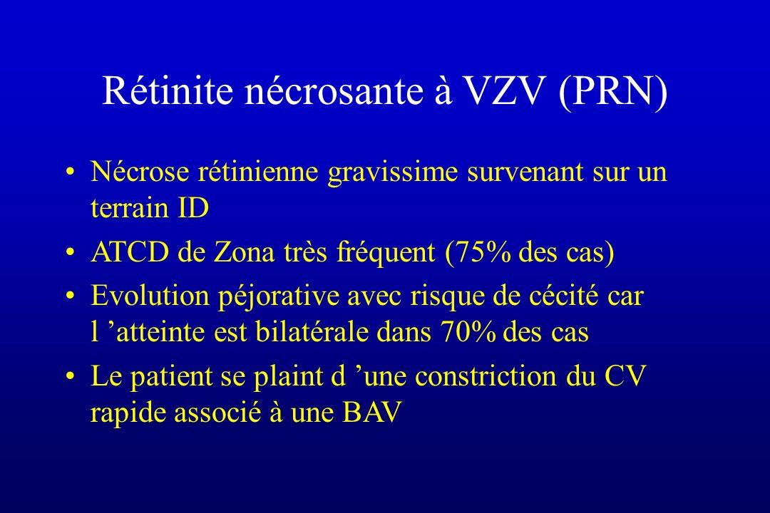 Rétinite nécrosante à VZV (PRN) Nécrose rétinienne gravissime survenant sur un terrain ID ATCD de Zona très fréquent (75% des cas) Evolution péjorativ