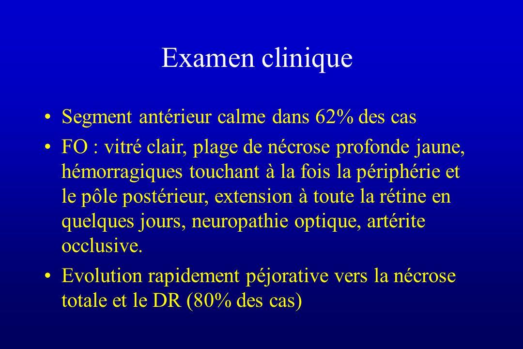 Examen clinique Segment antérieur calme dans 62% des cas FO : vitré clair, plage de nécrose profonde jaune, hémorragiques touchant à la fois la périph