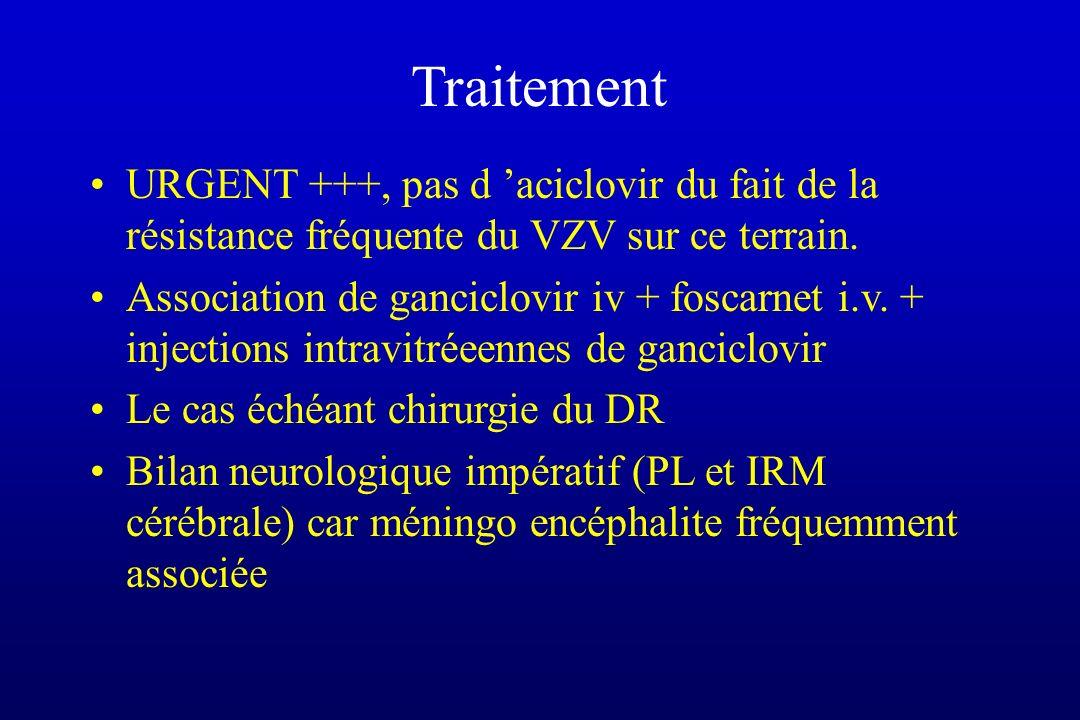 Traitement URGENT +++, pas d aciclovir du fait de la résistance fréquente du VZV sur ce terrain. Association de ganciclovir iv + foscarnet i.v. + inje
