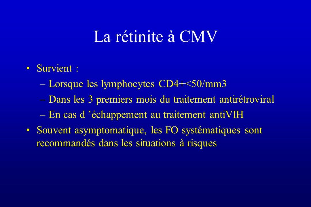 La rétinite à CMV Survient : –Lorsque les lymphocytes CD4+<50/mm3 –Dans les 3 premiers mois du traitement antirétroviral –En cas d échappement au trai