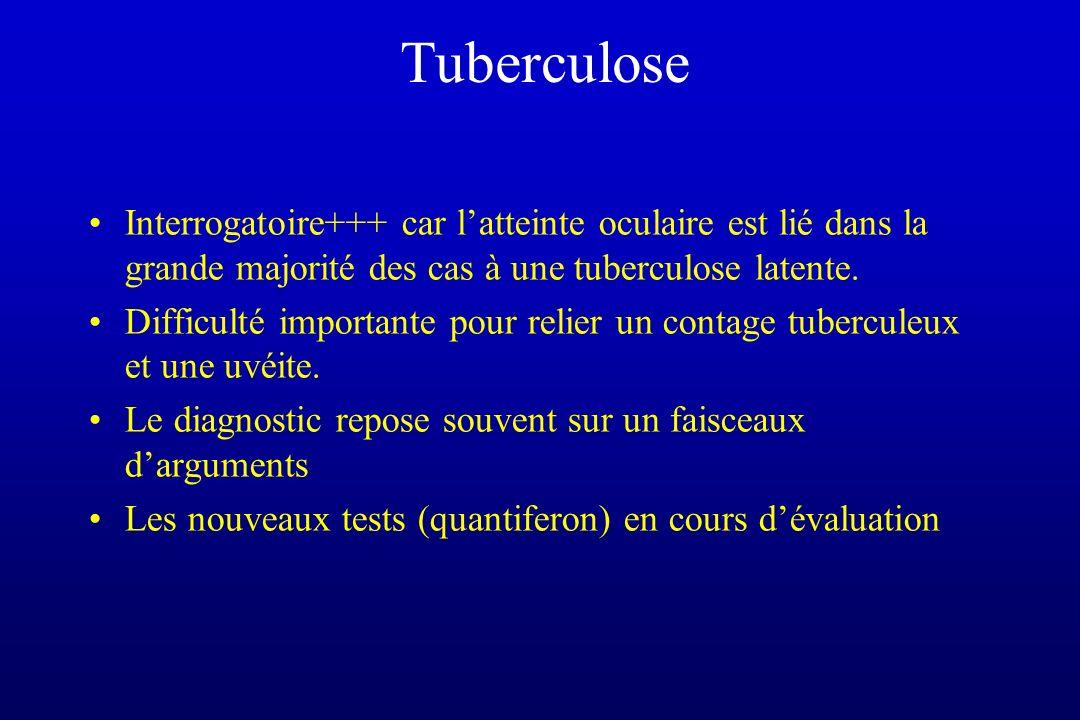 Tuberculose Interrogatoire+++ car latteinte oculaire est lié dans la grande majorité des cas à une tuberculose latente. Difficulté importante pour rel